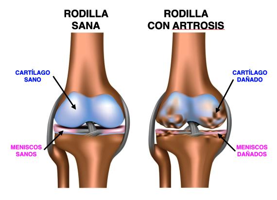 Esquema explicativo de la artrosis de rodilla (Dr. Bau)