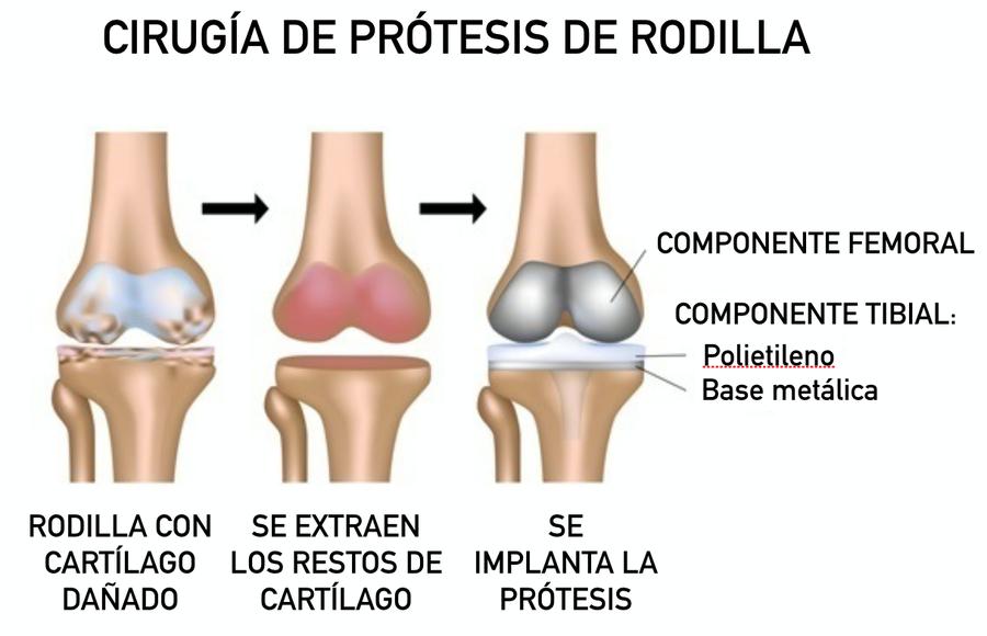Dr. Bau - La cirugía de implantación de una prótesis de rodilla