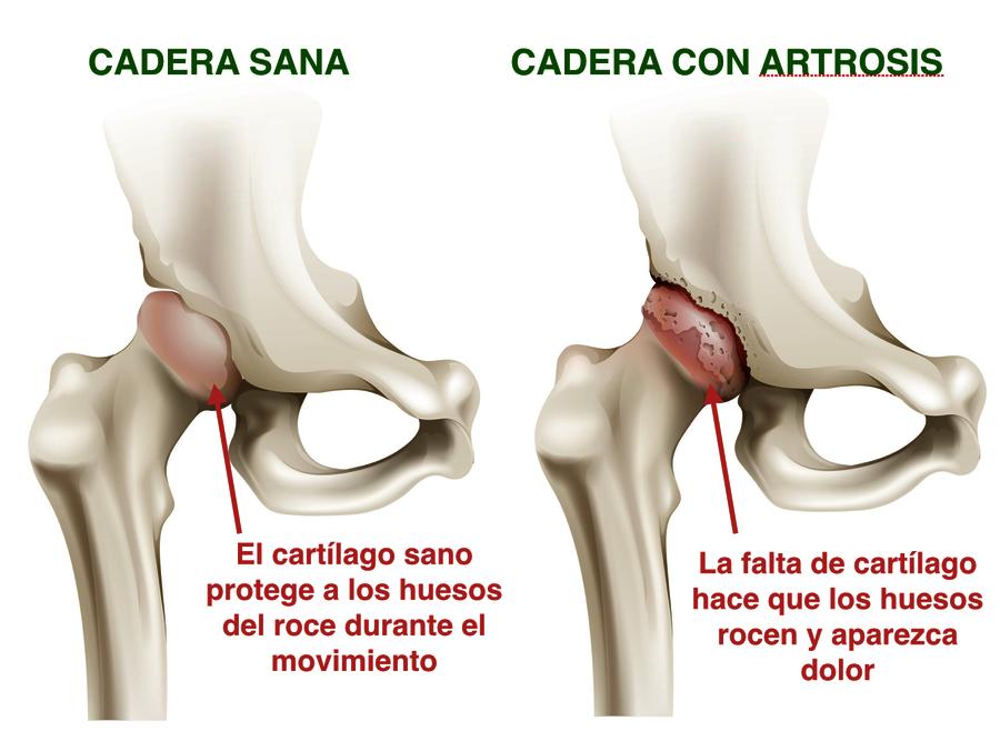 Dr. Bau - LA PRÓTESIS DE CADERA